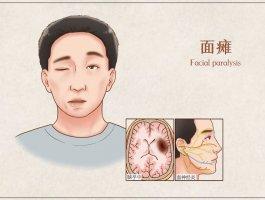 面瘫是什么导致的面瘫多久彻底恢复正常?
