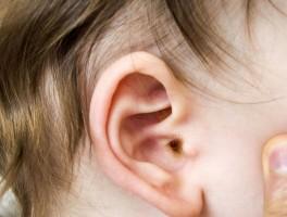 典型的化脓型中耳炎,迁延不治,导致耳聋