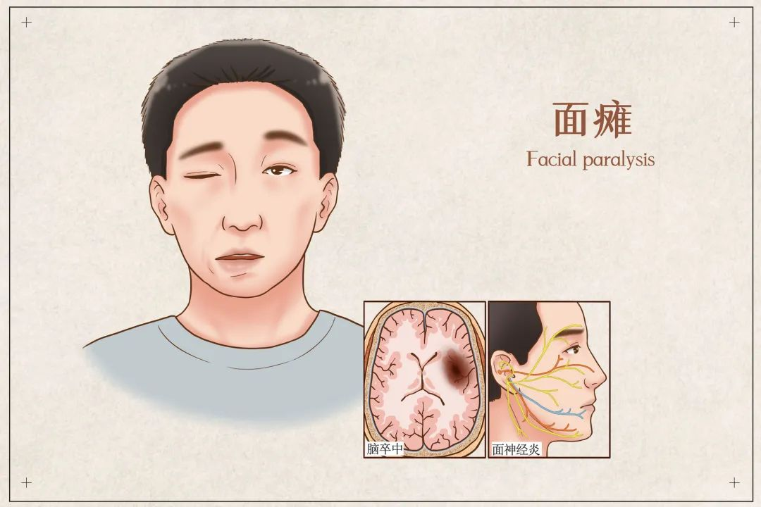 面瘫是什么导致的面瘫多久彻底恢复正常? 第1张