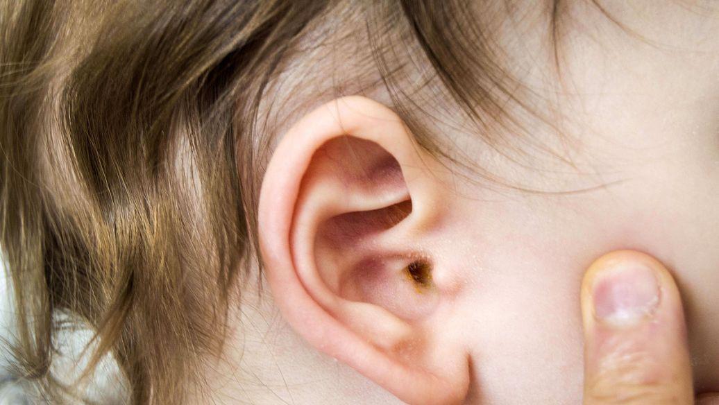 典型的化脓型中耳炎,迁延不治,导致耳聋 第1张
