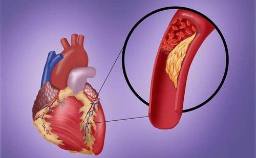 冠状动脉钙化起初没有任何症状是严重的吗? 第1张